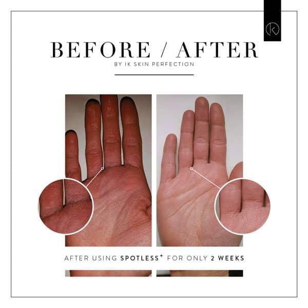 Schoonheidssalon Duiven - IK Skin Perfection SPOTLESS voor en na